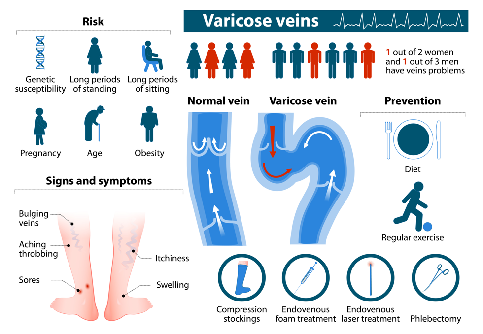 overview of varicose veins