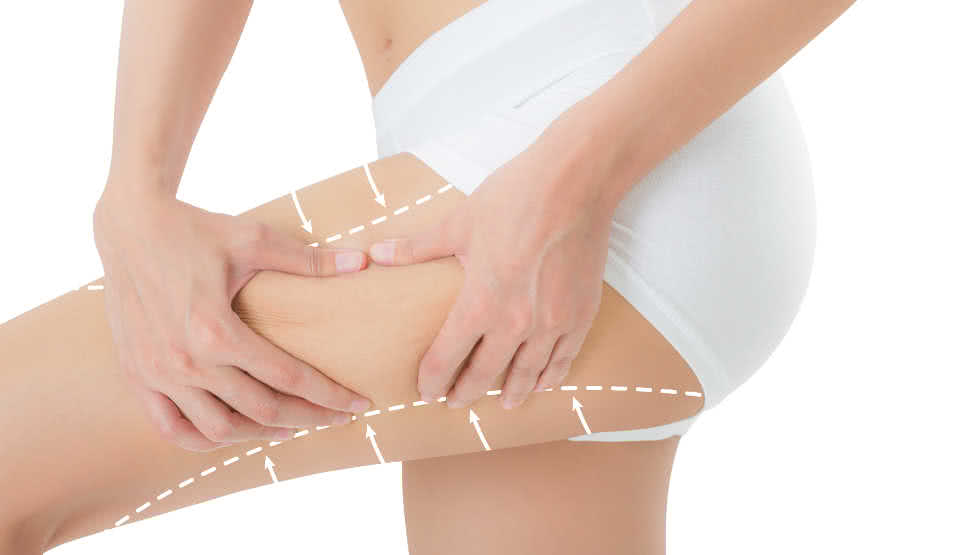 where fat can be taken from in liposuction